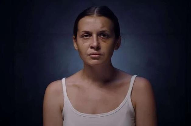 Жестоко избитая в поезде девушка снялась в клипе Alyona Alyona