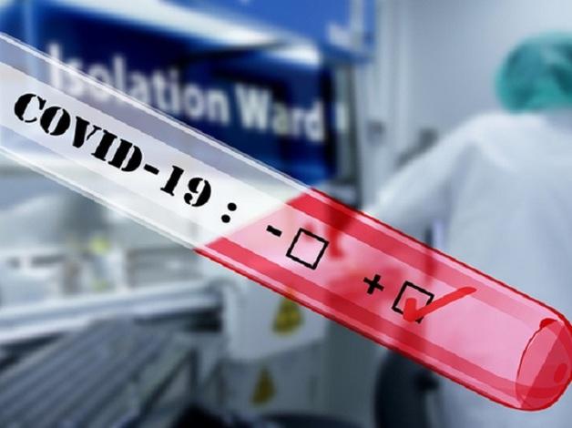 В Москве за сутки скончались еще 13 пациентов с коронавирусом