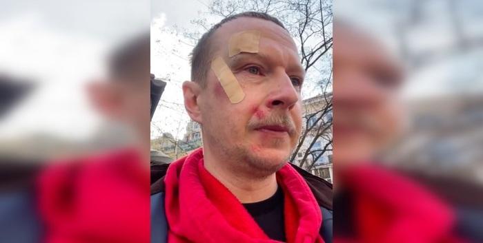 Избиение Майкла Щура в Киеве: ведущий отказался от экспертизы и признал свою неправоту