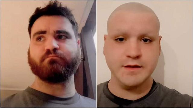 Болельщик побрил голову, бороду и брови после поражения Англии на Евро-2020