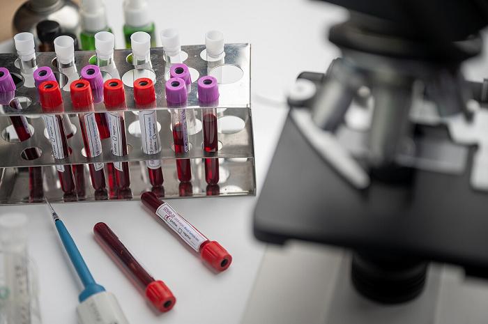 На Кипр будут пускать украинских туристов, привитых китайской вакциной CoronaVac