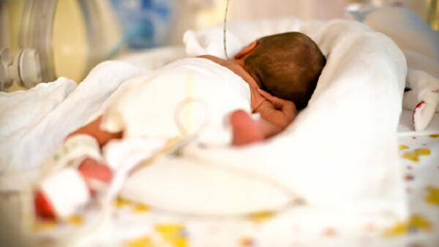 В Израиле родилась девочка с близнецом в желудке