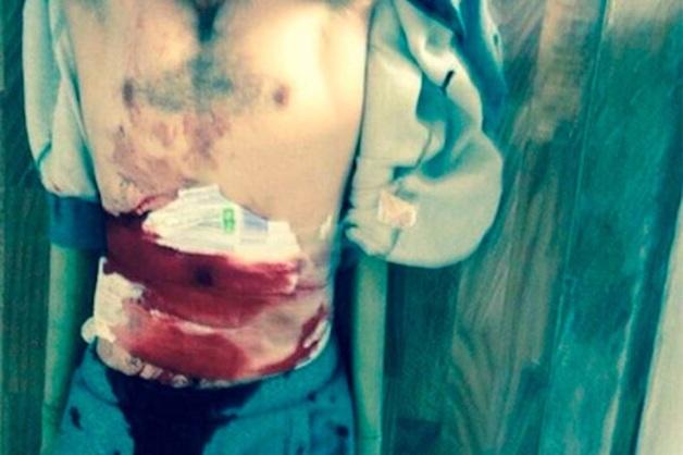 Боец ММА рассказал о друге, вскрывшем себе живот из-за пыток в полиции Дагестана