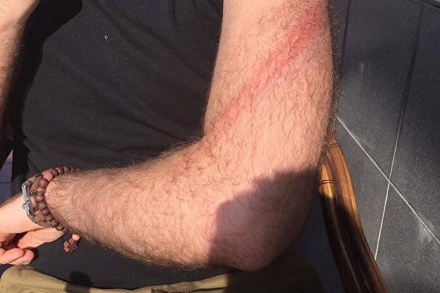 Журналиста «Комсомольской правды» избили нагайкой во время митинга в Москве