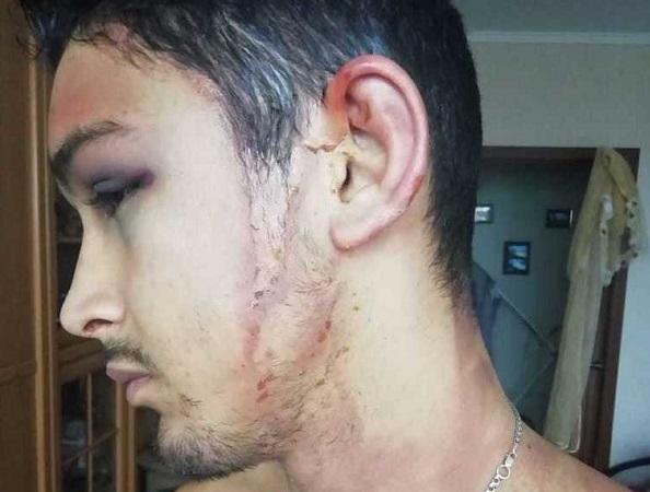 «У тебя есть три секунды, чтобы уйти»: в Новороссийске 25-летнего парня затащили в квартиру, били и пытали при помощи кипятка