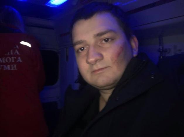 Нападение на нардепа Ананченко оказалось инсценировкой СБУ